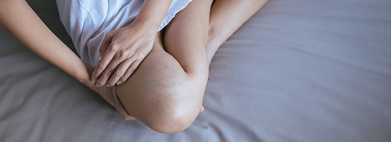 Blog-Types-of-Vein-Disease