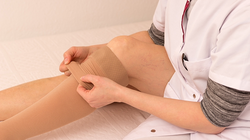 Blog-Vein-Disease-Swelling-Treatment